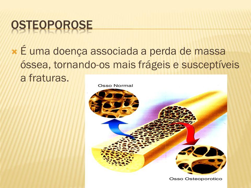 Osteoporose É uma doença associada a perda de massa óssea, tornando-os mais frágeis e susceptíveis a fraturas.