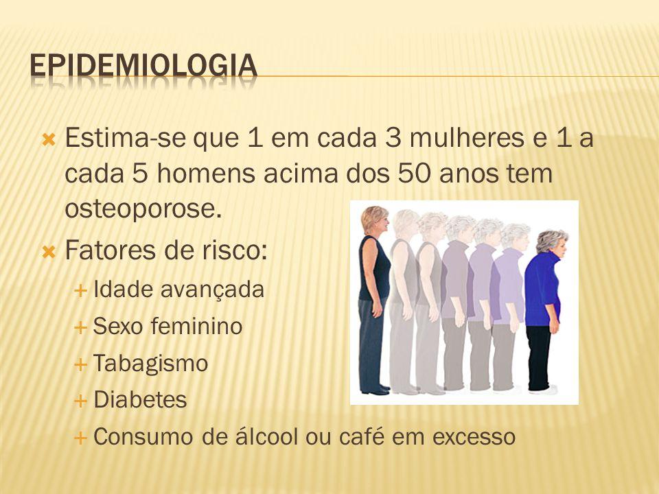 Epidemiologia Estima-se que 1 em cada 3 mulheres e 1 a cada 5 homens acima dos 50 anos tem osteoporose.