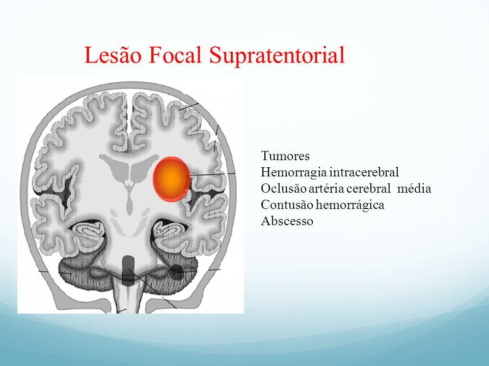 Lesão Focal Supratentorial
