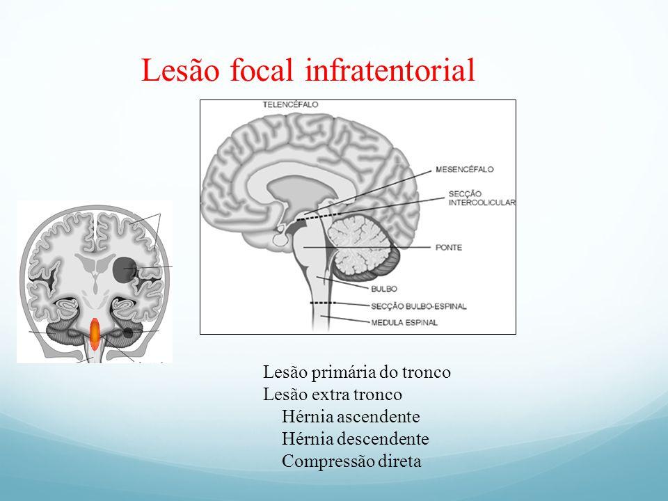 Lesão focal infratentorial