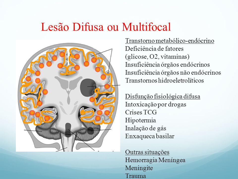 Lesão Difusa ou Multifocal