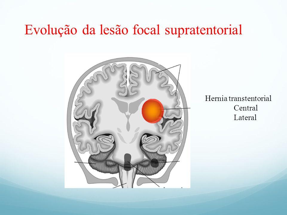 Evolução da lesão focal supratentorial