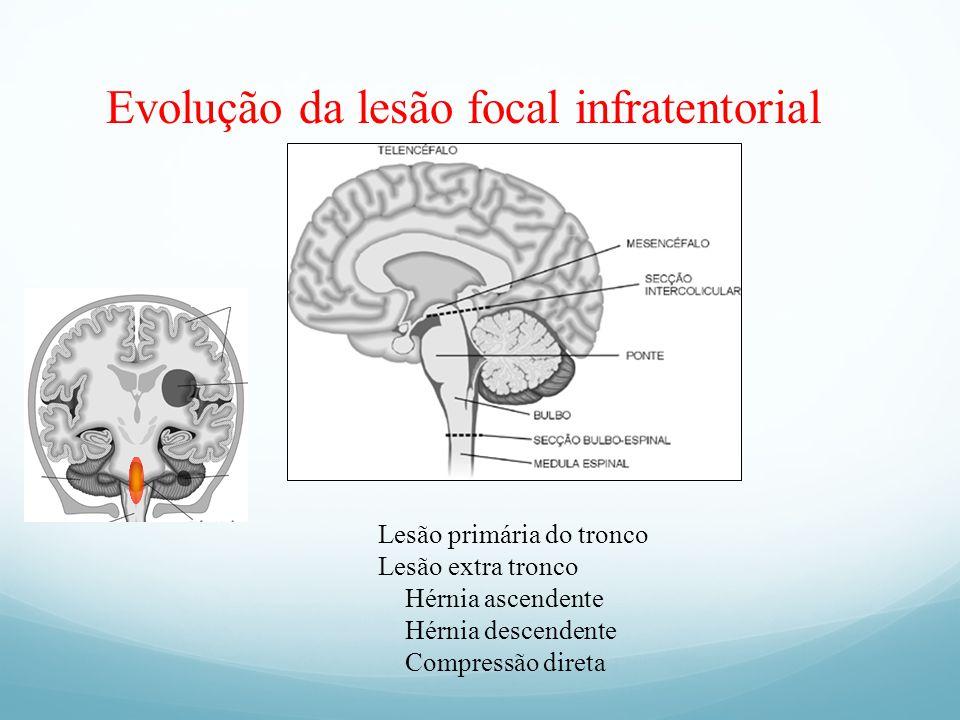 Evolução da lesão focal infratentorial