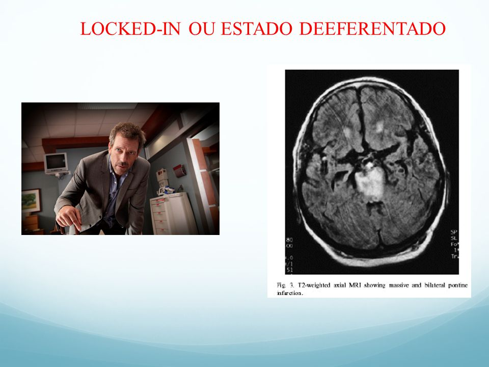 LOCKED-IN OU ESTADO DEEFERENTADO