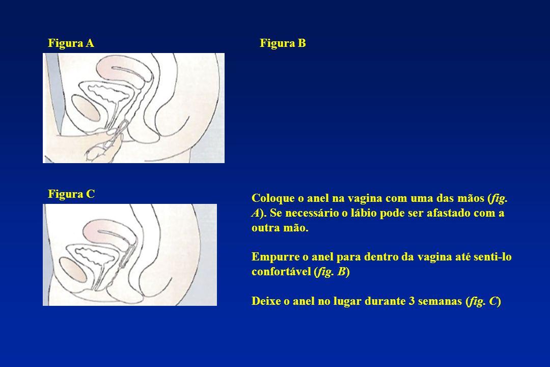 Figura A Figura B. Figura C. Coloque o anel na vagina com uma das mãos (fig. A). Se necessário o lábio pode ser afastado com a outra mão.
