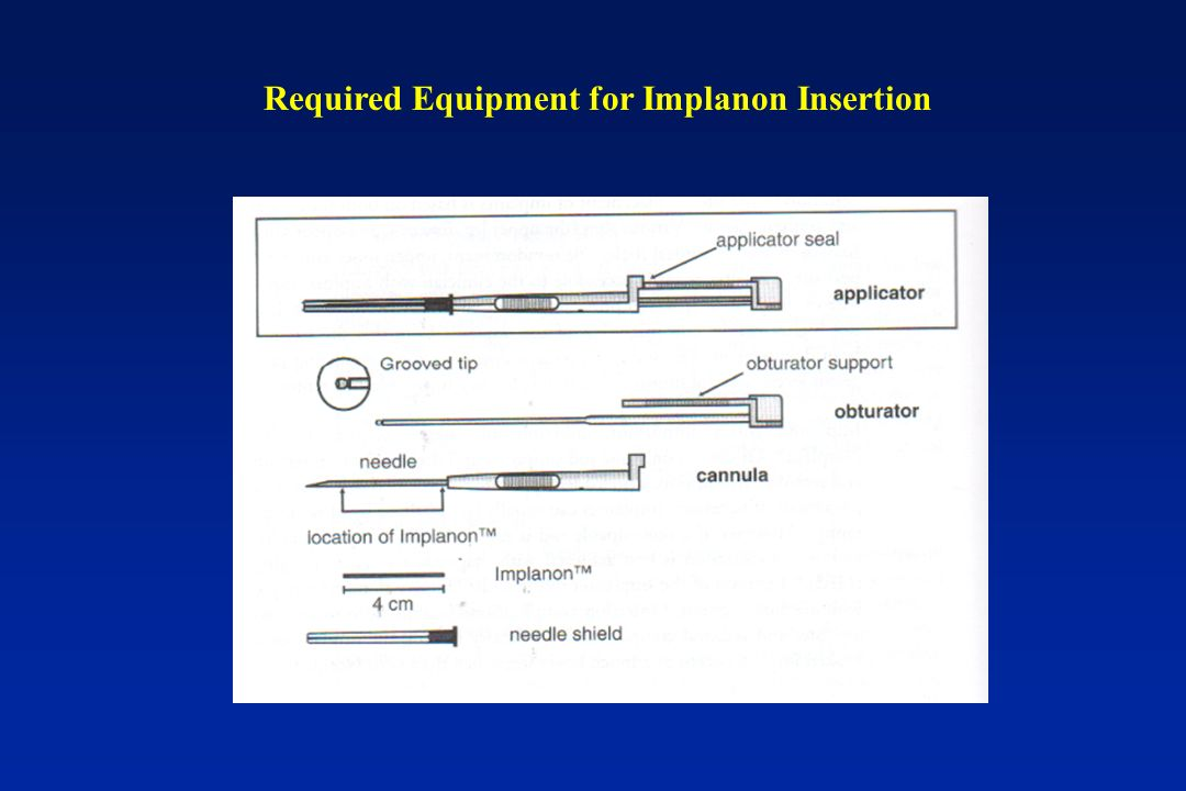 Required Equipment for Implanon Insertion