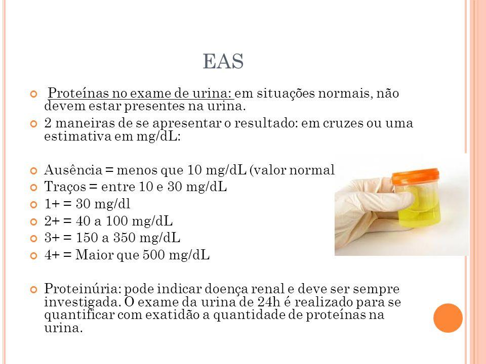 EAS Proteínas no exame de urina: em situações normais, não devem estar presentes na urina.