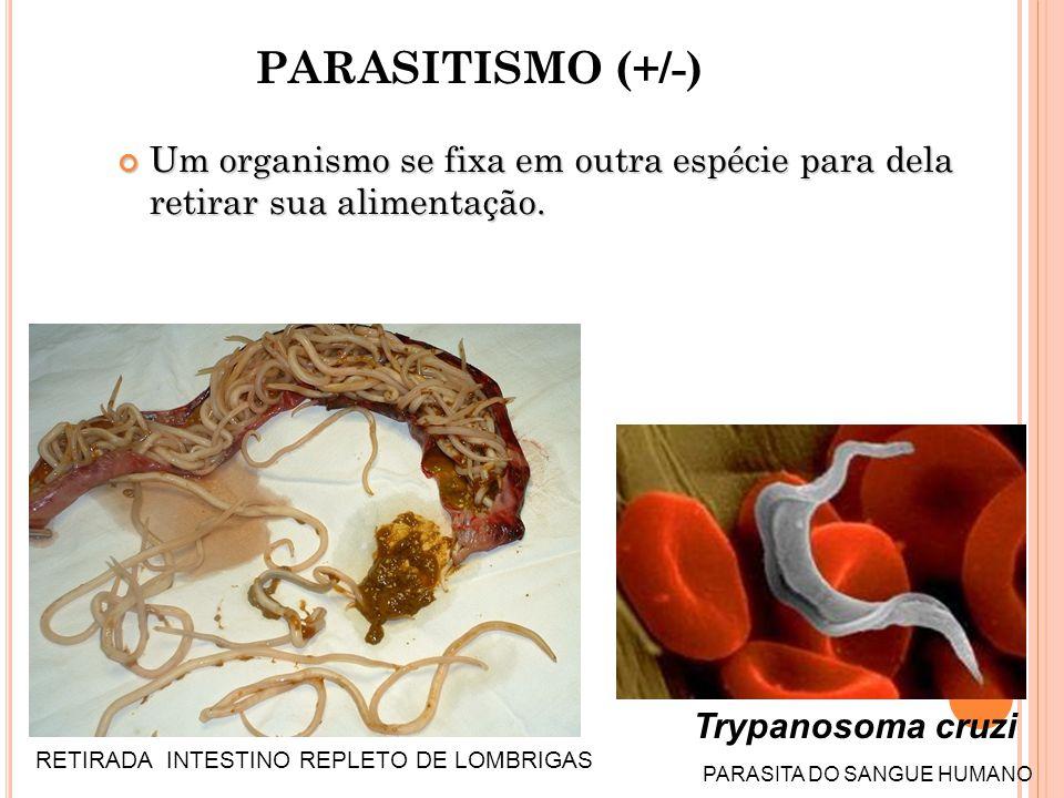 PARASITISMO (+/-) Um organismo se fixa em outra espécie para dela retirar sua alimentação. Trypanosoma cruzi.