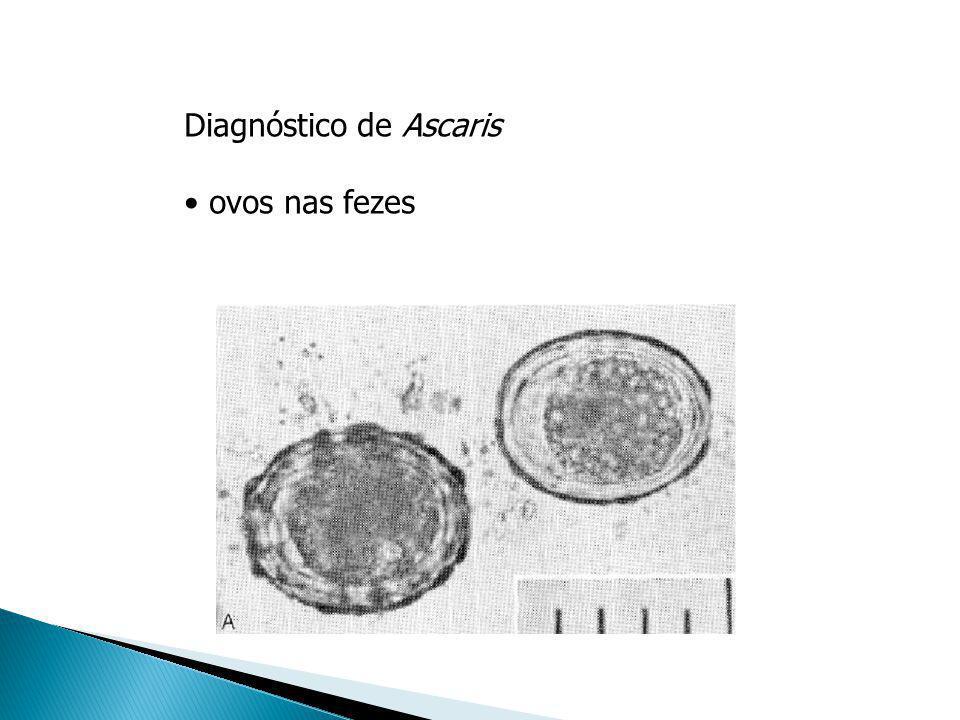 Diagnóstico de Ascaris