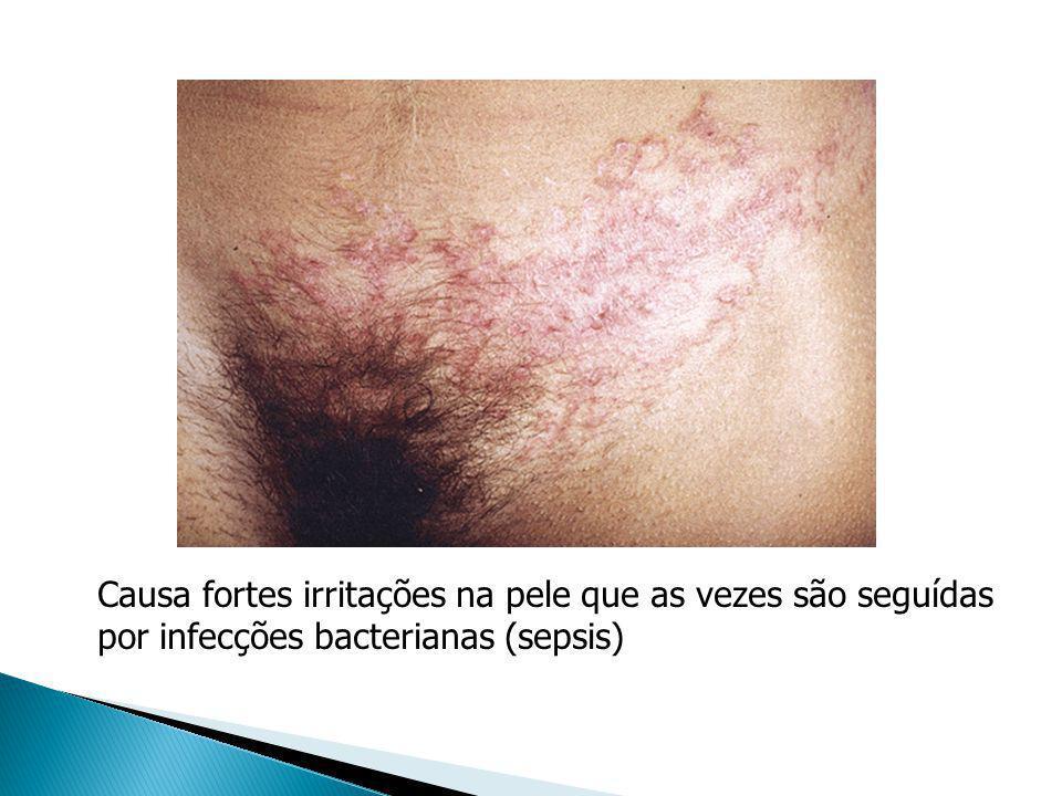 Causa fortes irritações na pele que as vezes são seguídas