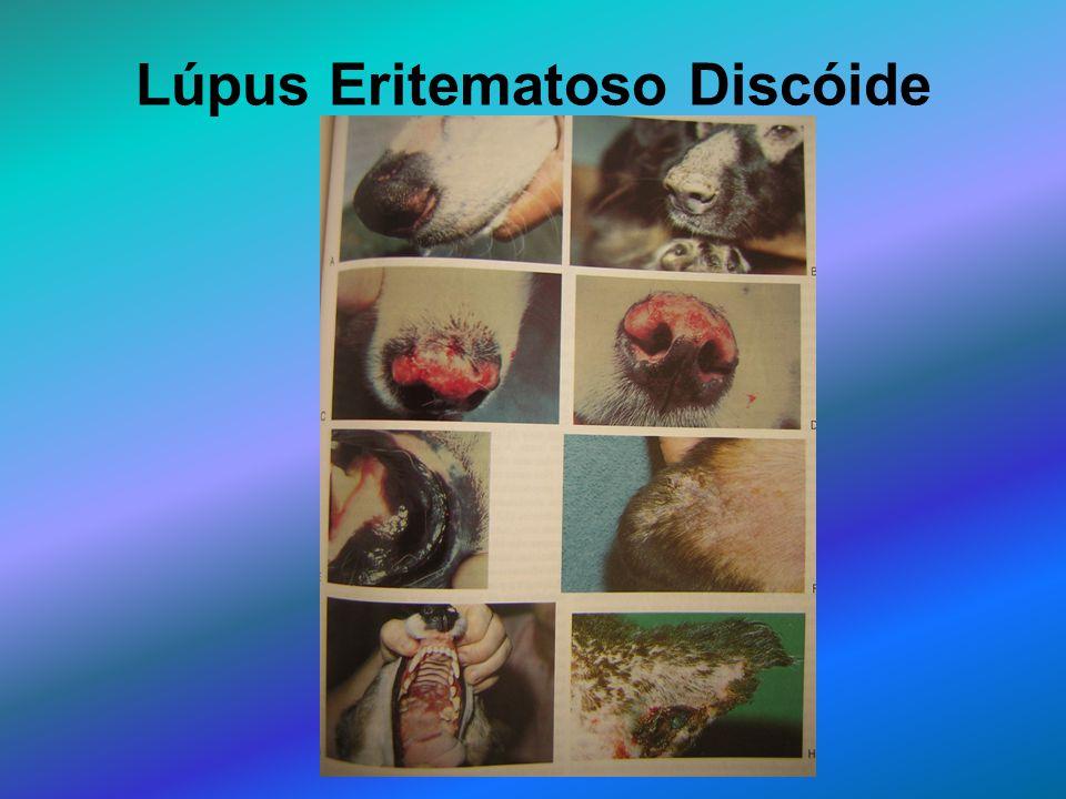 Lúpus Eritematoso Discóide
