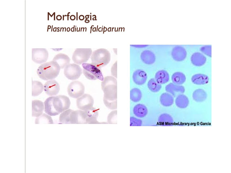 Morfologia Plasmodium falciparum
