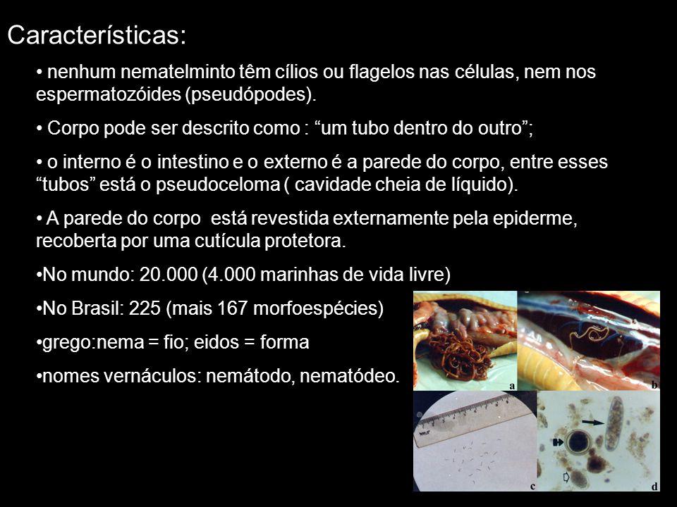 Características: nenhum nematelminto têm cílios ou flagelos nas células, nem nos espermatozóides (pseudópodes).
