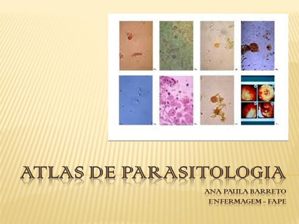 Atlas de parasitologia ANA PAULA BARRETO ENFERMAGEM - FAPE