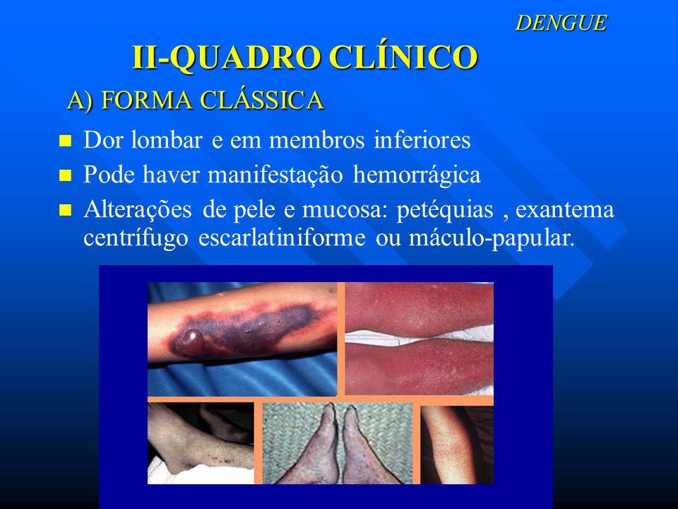 Dor lombar e em membros inferiores Pode haver manifestação hemorrágica