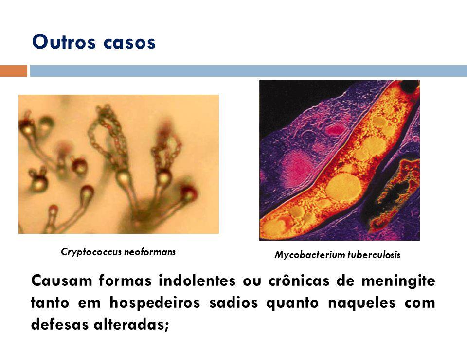 Mycobacterium tuberculosis Cryptococcus neoformans