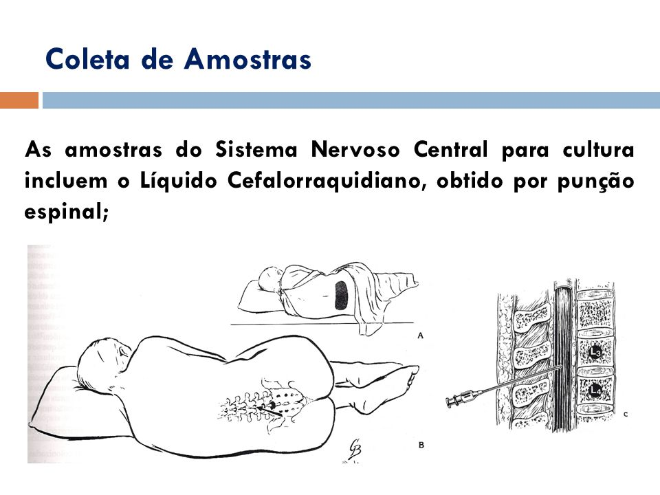 Coleta de Amostras As amostras do Sistema Nervoso Central para cultura incluem o Líquido Cefalorraquidiano, obtido por punção espinal;