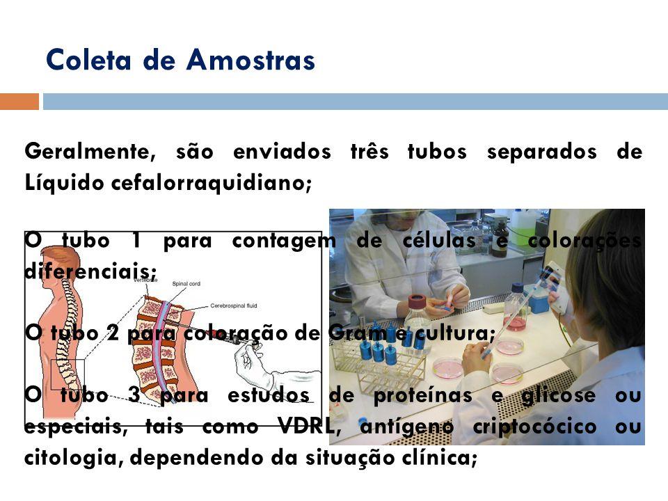 Coleta de Amostras Geralmente, são enviados três tubos separados de Líquido cefalorraquidiano;
