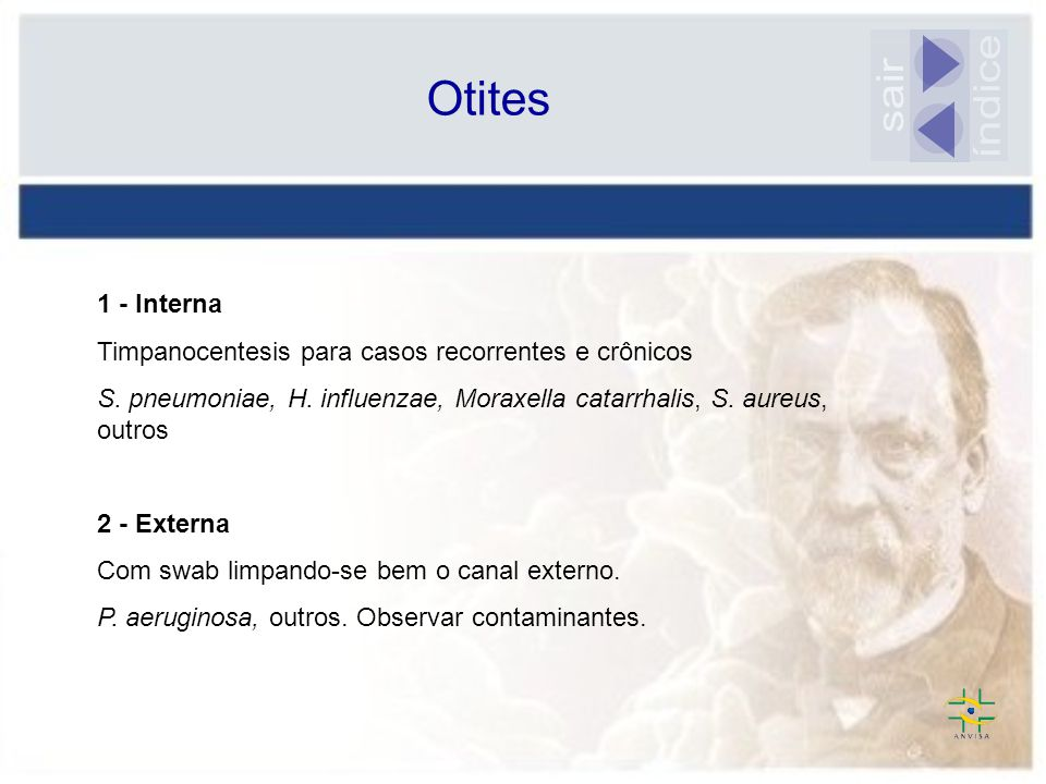 índice sair Otites 1 - Interna