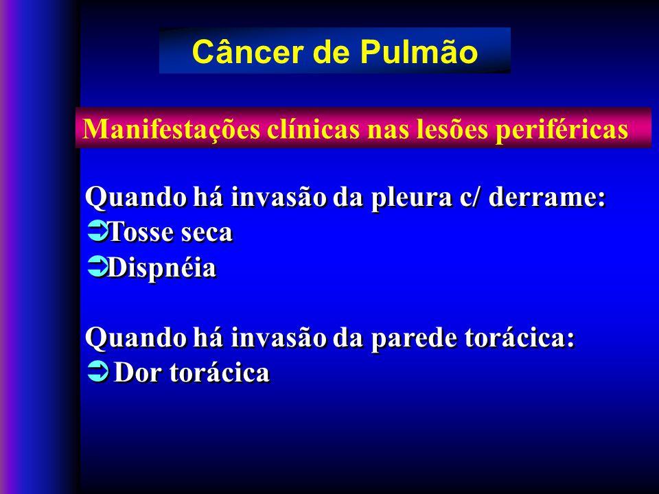 Câncer de Pulmão Manifestações clínicas nas lesões periféricas