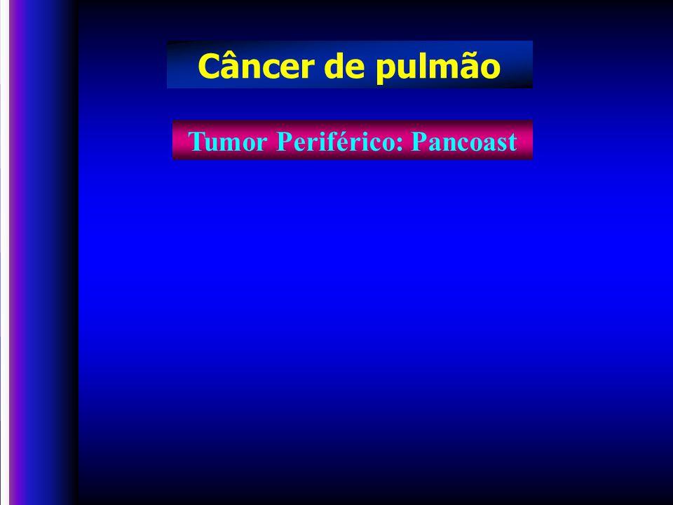 Tumor Periférico: Pancoast