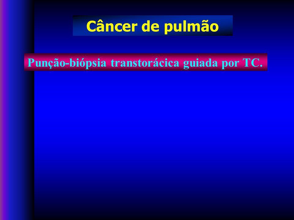 Câncer de pulmão Punção-biópsia transtorácica guiada por TC.