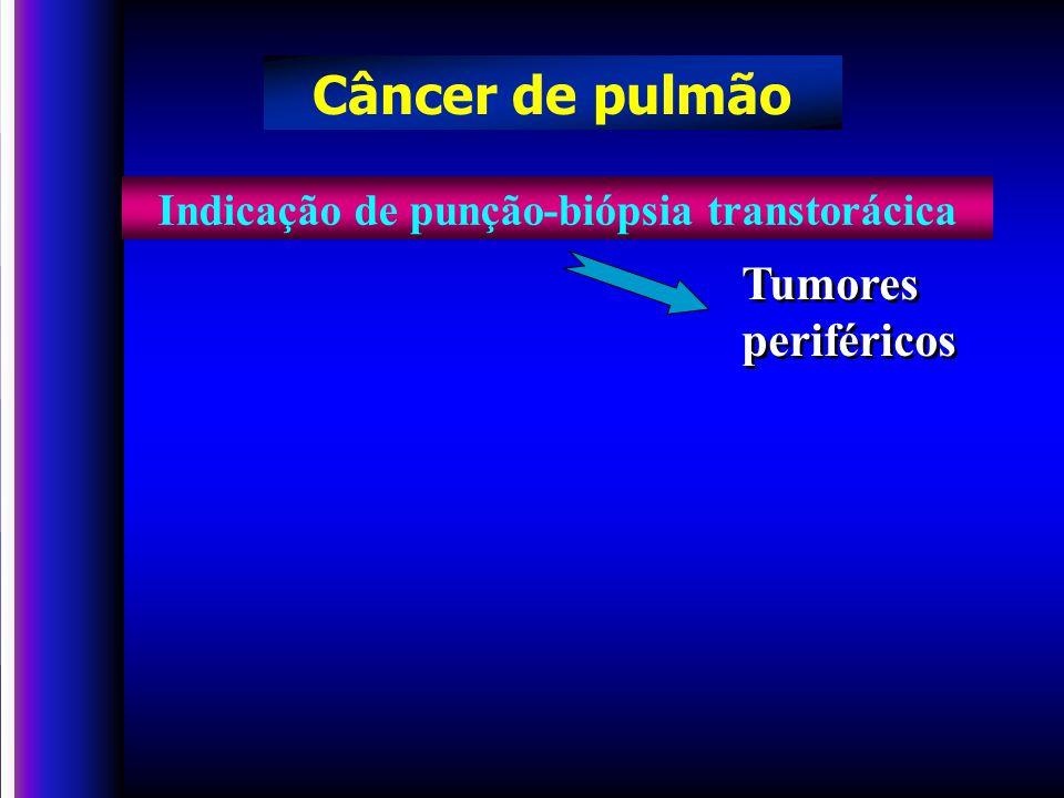 Indicação de punção-biópsia transtorácica