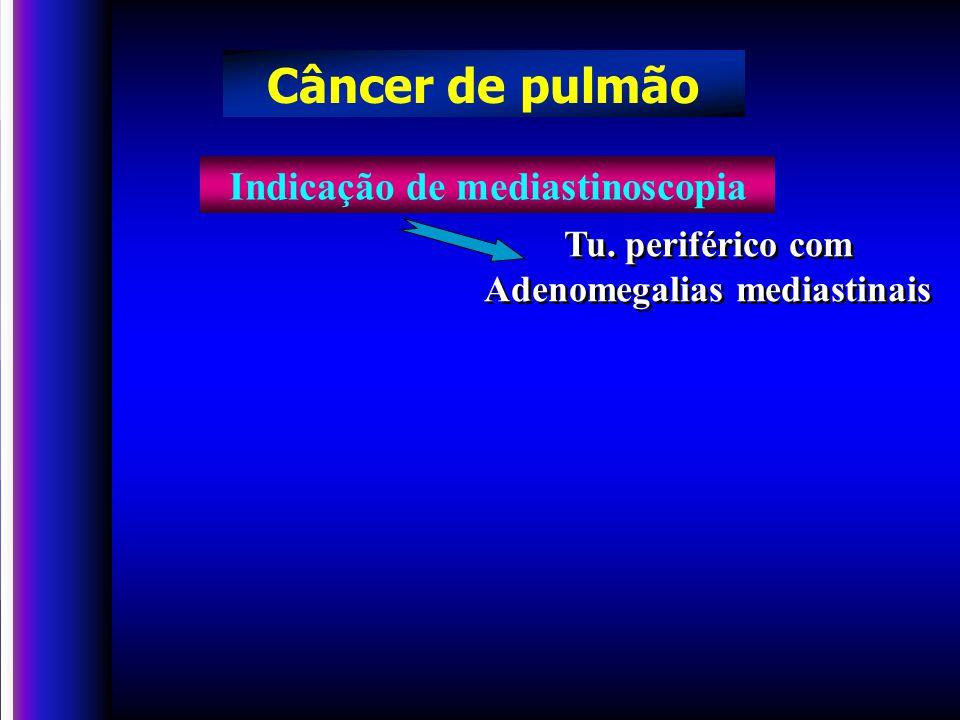 Indicação de mediastinoscopia