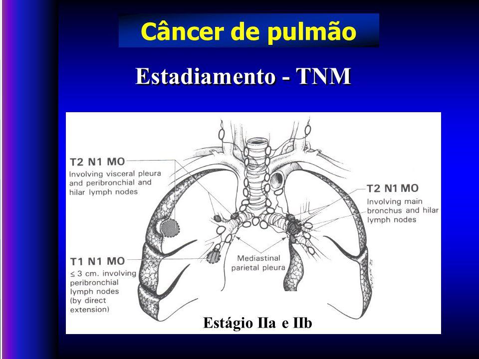 Câncer de pulmão Estadiamento - TNM Estágio IIa e IIb