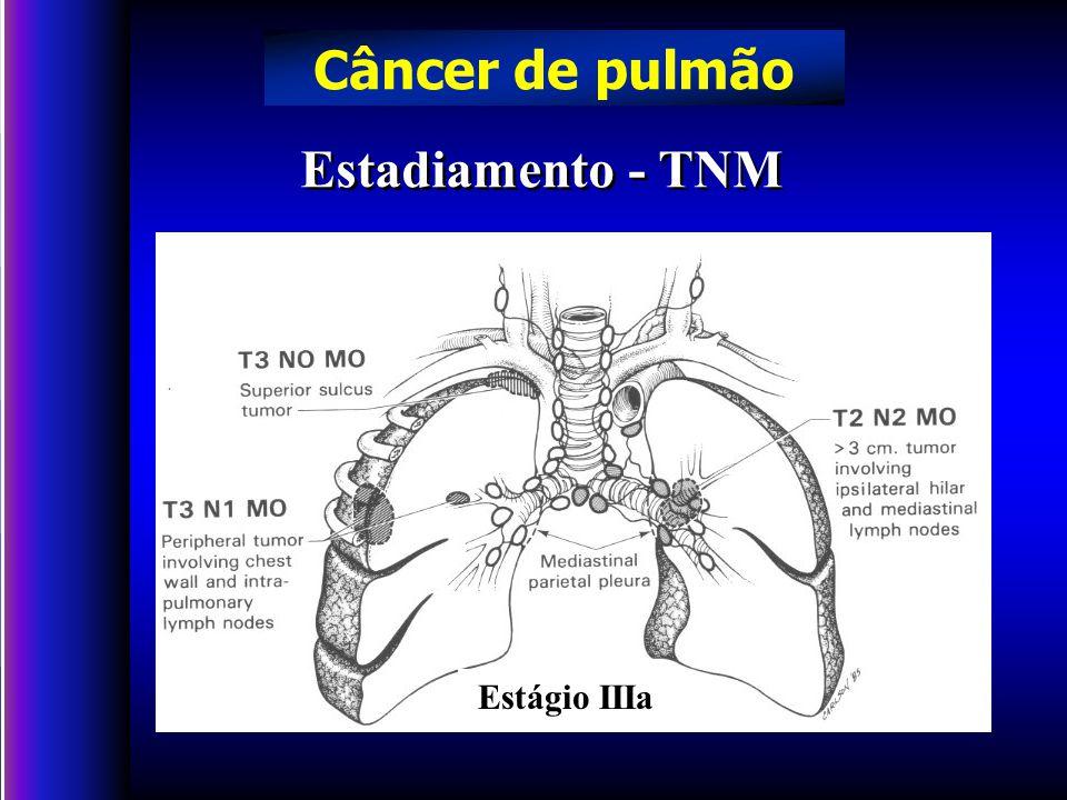 Câncer de pulmão Estadiamento - TNM Estágio IIIa