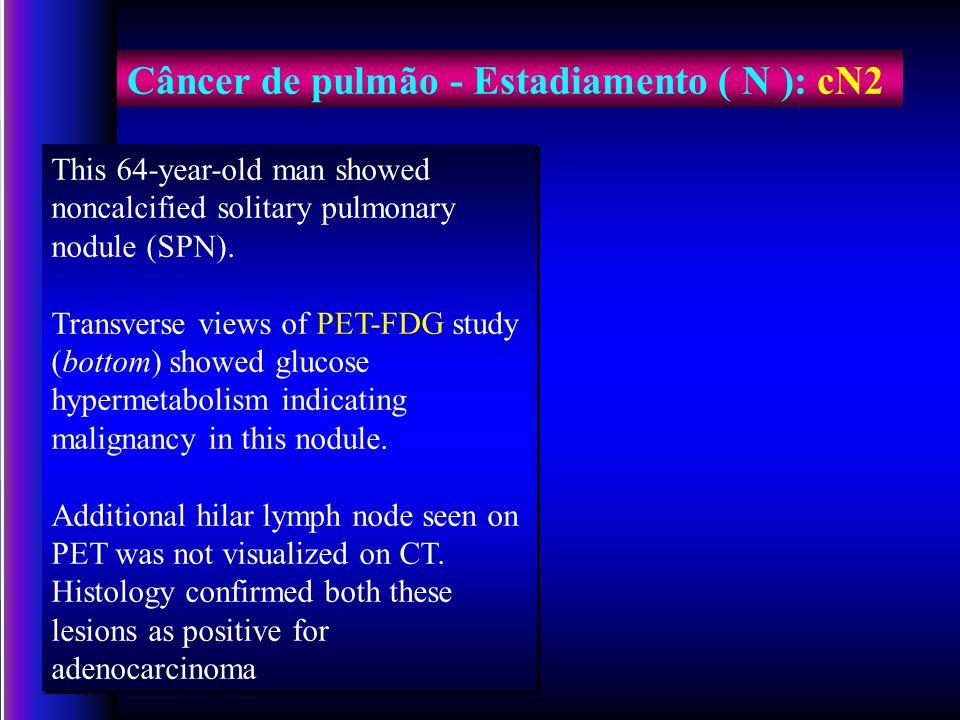 Câncer de pulmão - Estadiamento ( N ): cN2
