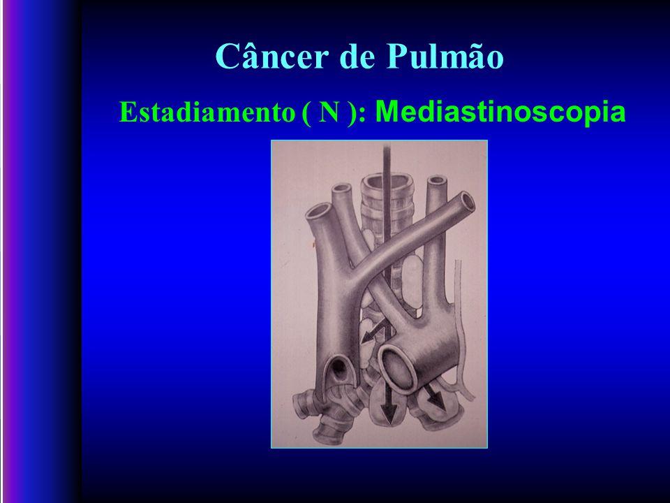 Câncer de Pulmão Estadiamento ( N ): Mediastinoscopia