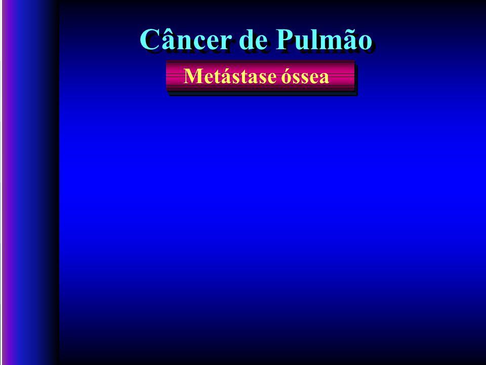 Câncer de Pulmão Metástase óssea