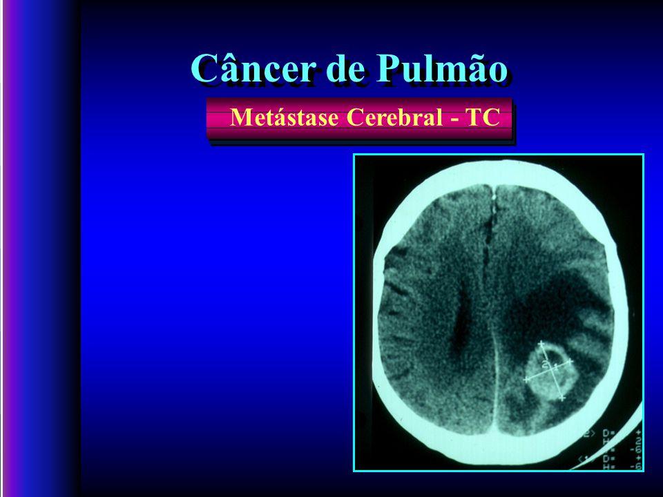 Câncer de Pulmão Metástase Cerebral - TC