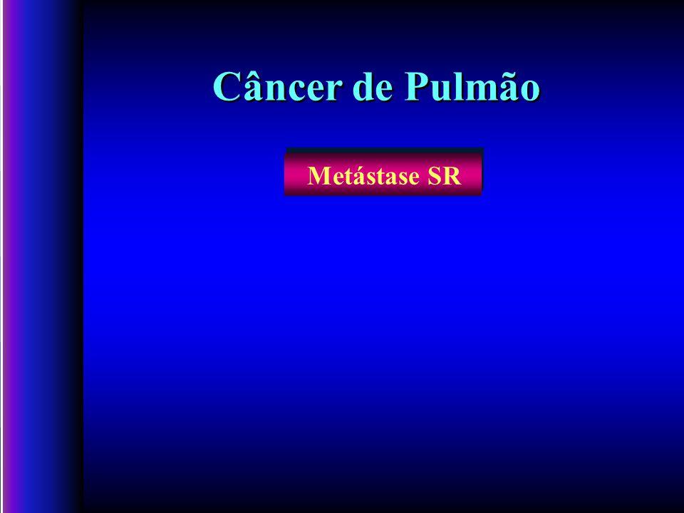 Câncer de Pulmão Metástase SR