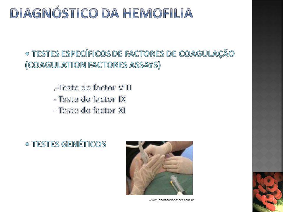 Diagnóstico da Hemofilia