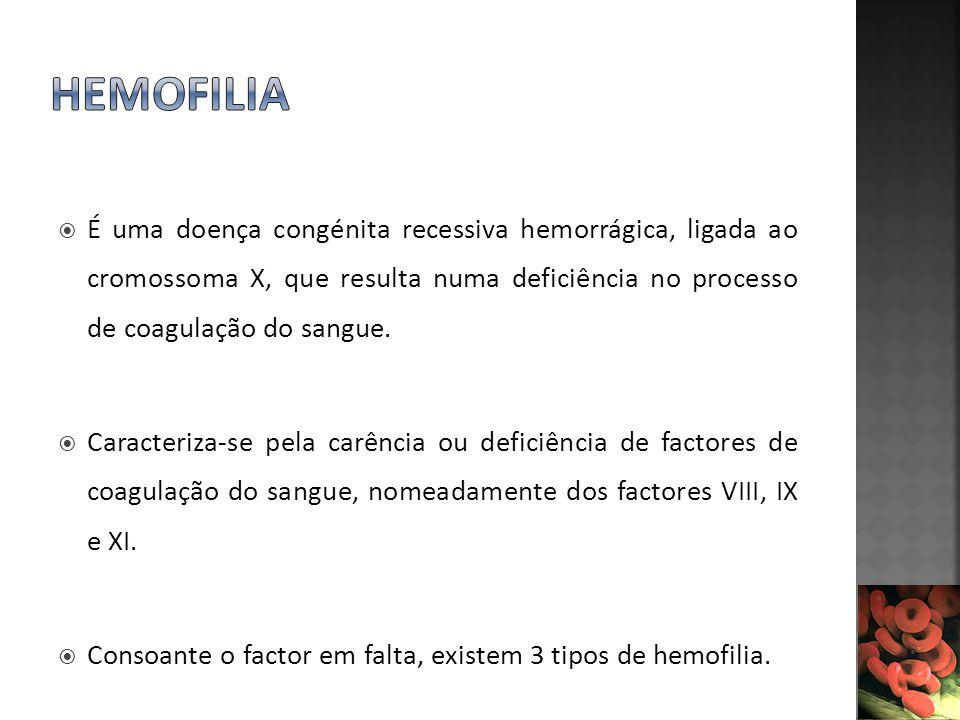 HEMOFILIA É uma doença congénita recessiva hemorrágica, ligada ao cromossoma X, que resulta numa deficiência no processo de coagulação do sangue.