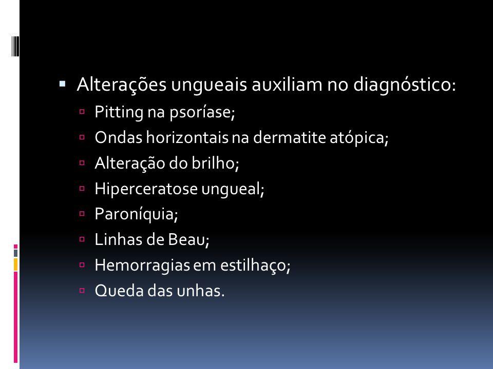 Alterações ungueais auxiliam no diagnóstico:
