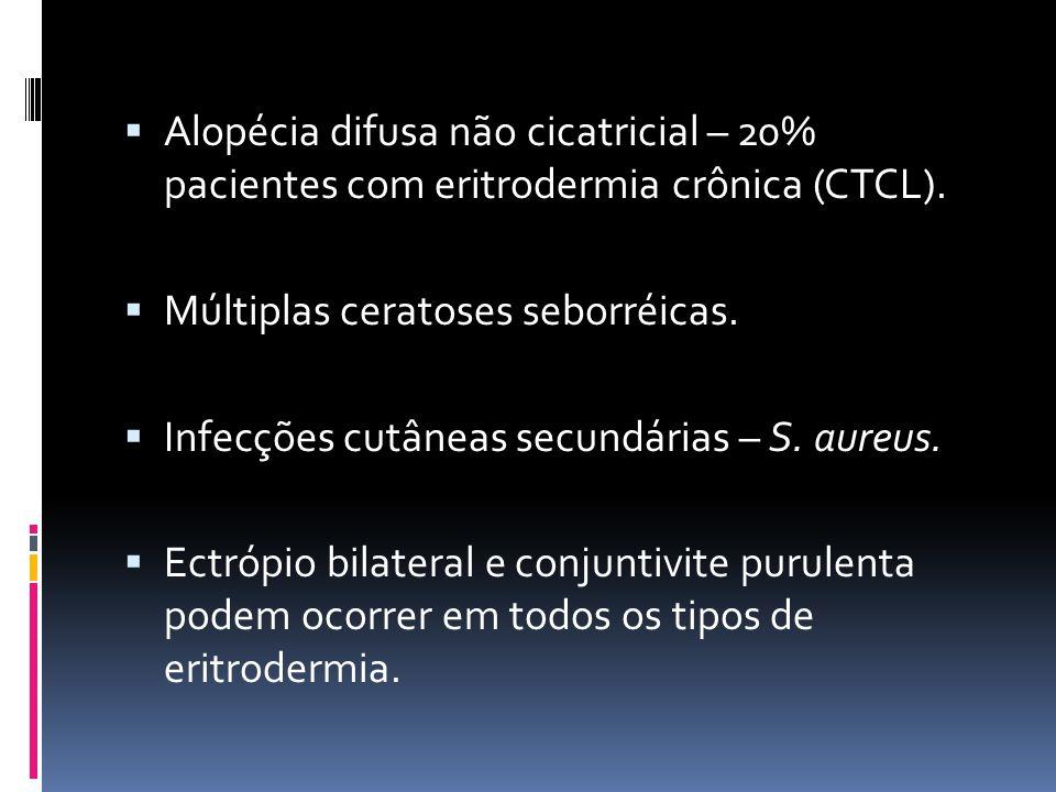 Alopécia difusa não cicatricial – 20% pacientes com eritrodermia crônica (CTCL).