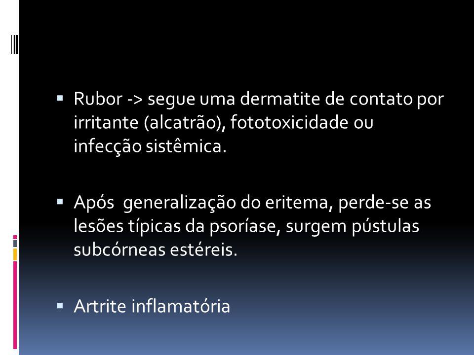 Rubor -> segue uma dermatite de contato por irritante (alcatrão), fototoxicidade ou infecção sistêmica.
