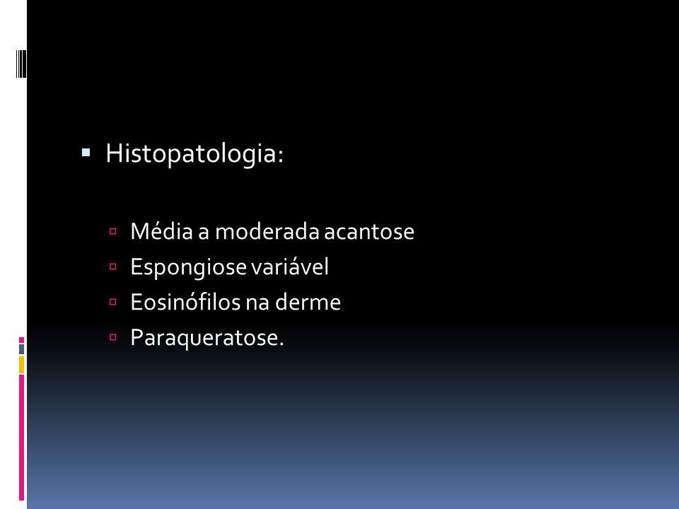 Histopatologia: Média a moderada acantose Espongiose variável