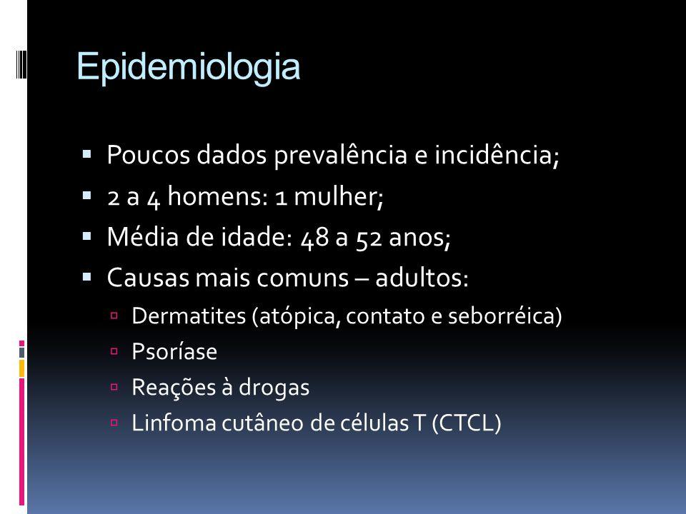 Epidemiologia Poucos dados prevalência e incidência;