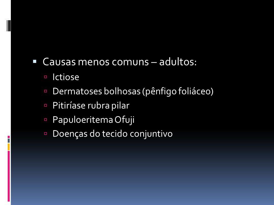Causas menos comuns – adultos: