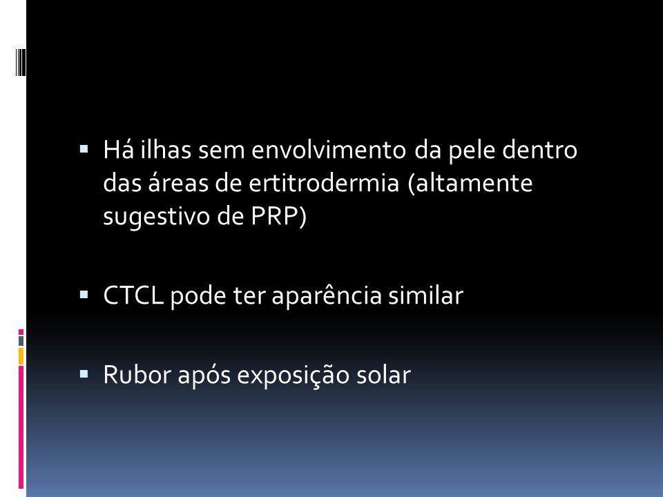 Há ilhas sem envolvimento da pele dentro das áreas de ertitrodermia (altamente sugestivo de PRP)