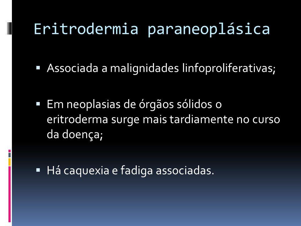 Eritrodermia paraneoplásica