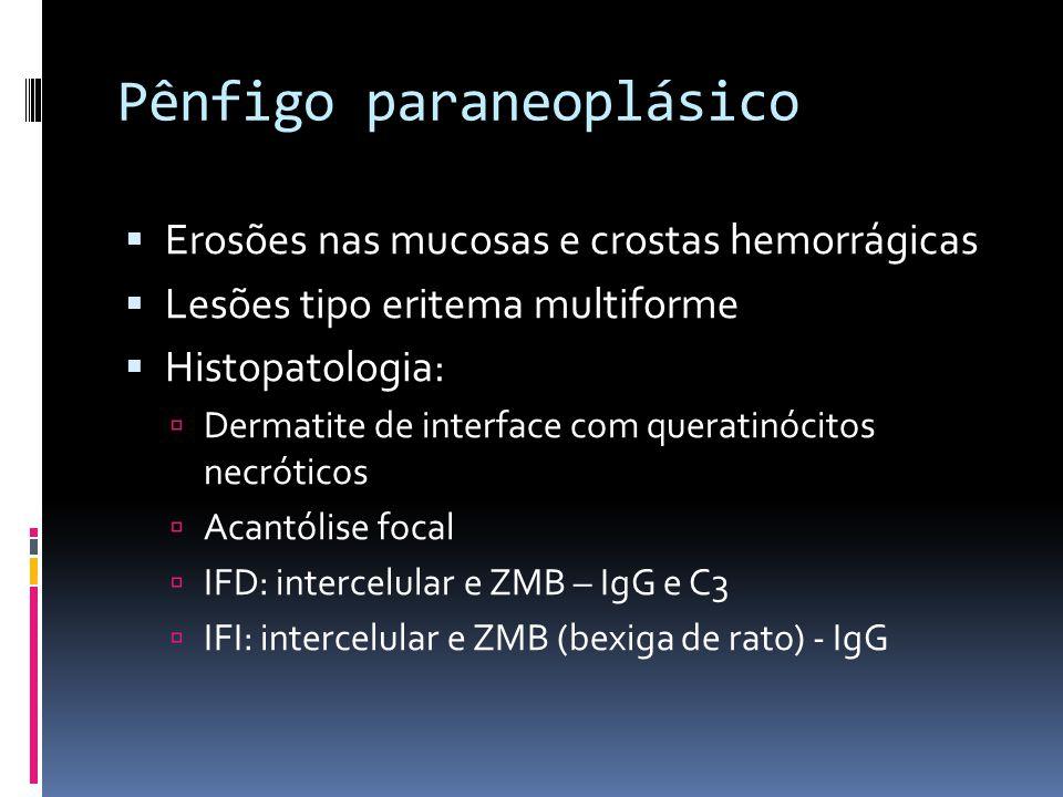 Pênfigo paraneoplásico