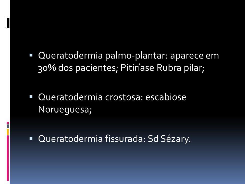 Queratodermia palmo-plantar: aparece em 30% dos pacientes; Pitiríase Rubra pilar;