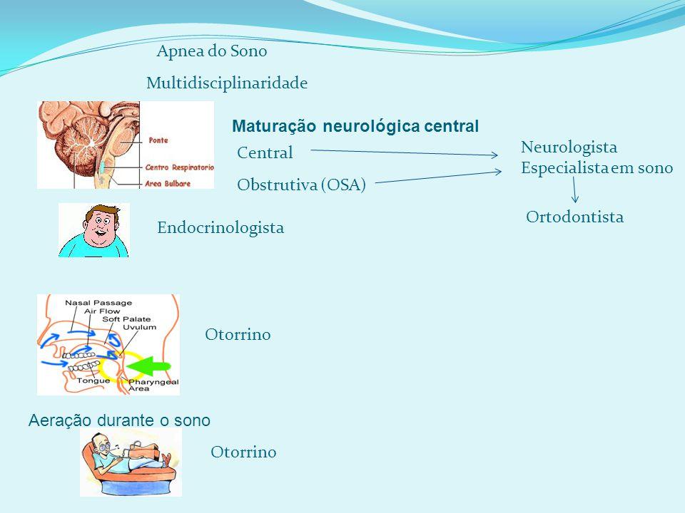 Apnea do Sono Multidisciplinaridade. Maturação neurológica central. Neurologista. Especialista em sono.