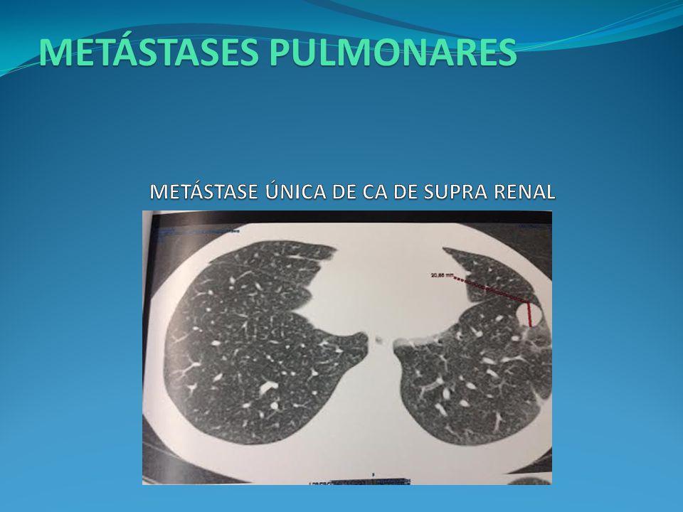 METÁSTASE ÚNICA DE CA DE SUPRA RENAL