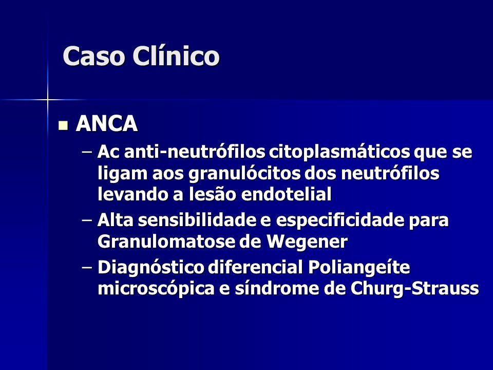Caso Clínico ANCA. Ac anti-neutrófilos citoplasmáticos que se ligam aos granulócitos dos neutrófilos levando a lesão endotelial.